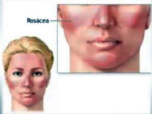 rosacea3