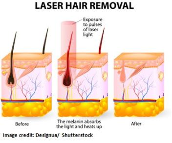 Laser Hair Removal A Definitive Guide of Expectations, Myth and New Technologies 2