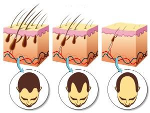crece-pelo-alopecia