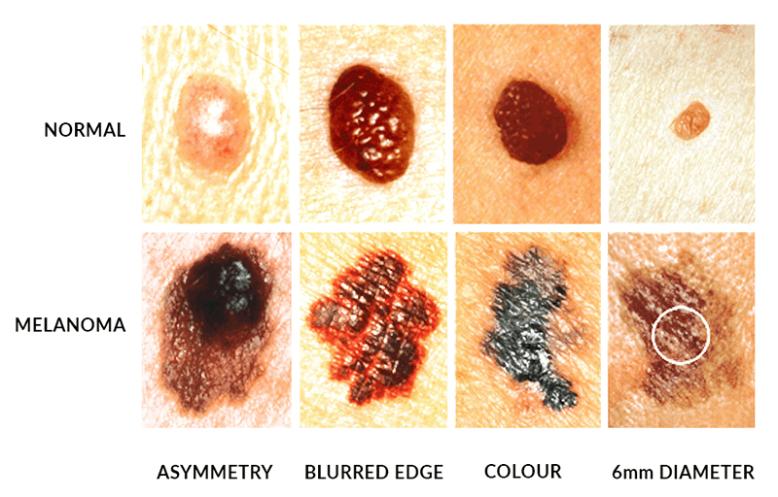 spotting-melanoma