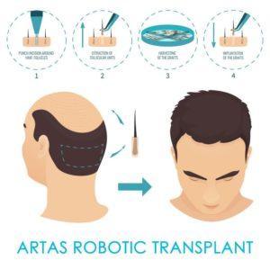 Artas-Robotic-Transplant-300x300