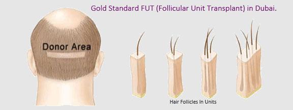 Gold-Standard-FUT-dubai1