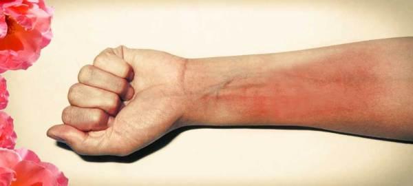foto-de-irritacion-por-depilacion